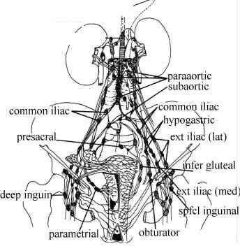 Cancer of the Uterus (Endometrium) and Node Spread