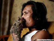Tree Man - L'uomo Albero fuma una sigaretta