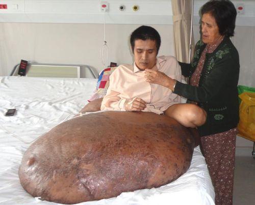 Operato l'uomo con un tumore di 89kg