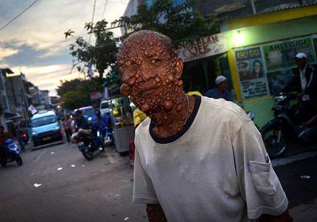 Uomo bolla (1)