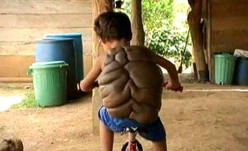 Il bimbo tartaruga