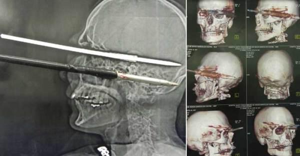Si spara accidentalmente un arpione in testa e sopravvive (1)