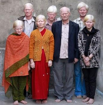 La famiglia (indiana) di albini più numerosa (1)