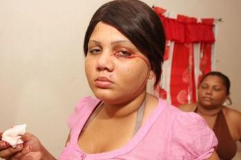 Delfina Cedeno, la ragazza che piange e trasuda sangue (1)