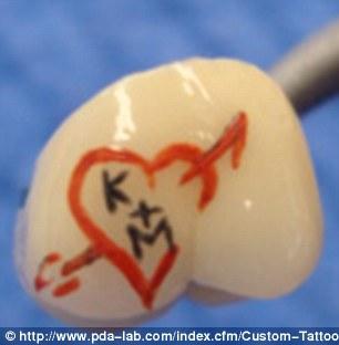 Tatuaggi sui denti (6)