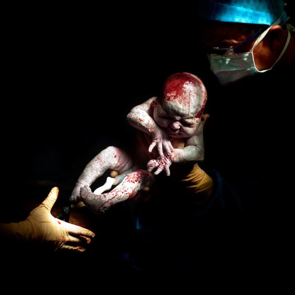 Christian Berthelot cattura i primi attimi di vita dei neonati (6)