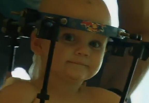 Miracolo: medici riescono a riattaccare la testa decapitata di un bimbo