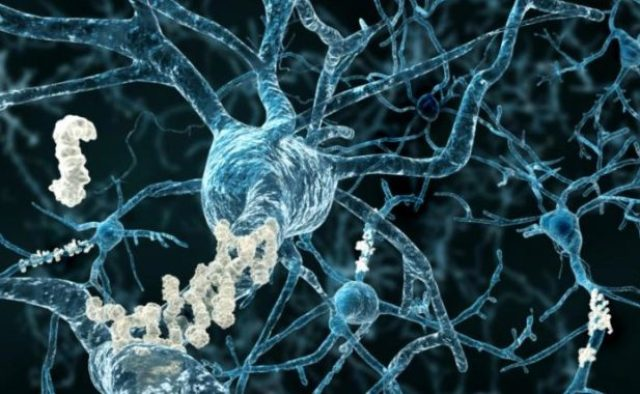 Alzheimer's neurons
