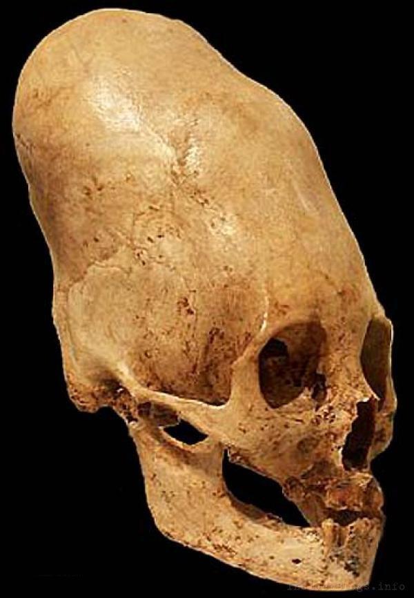 Artificial cranial deformation  Wikipedia