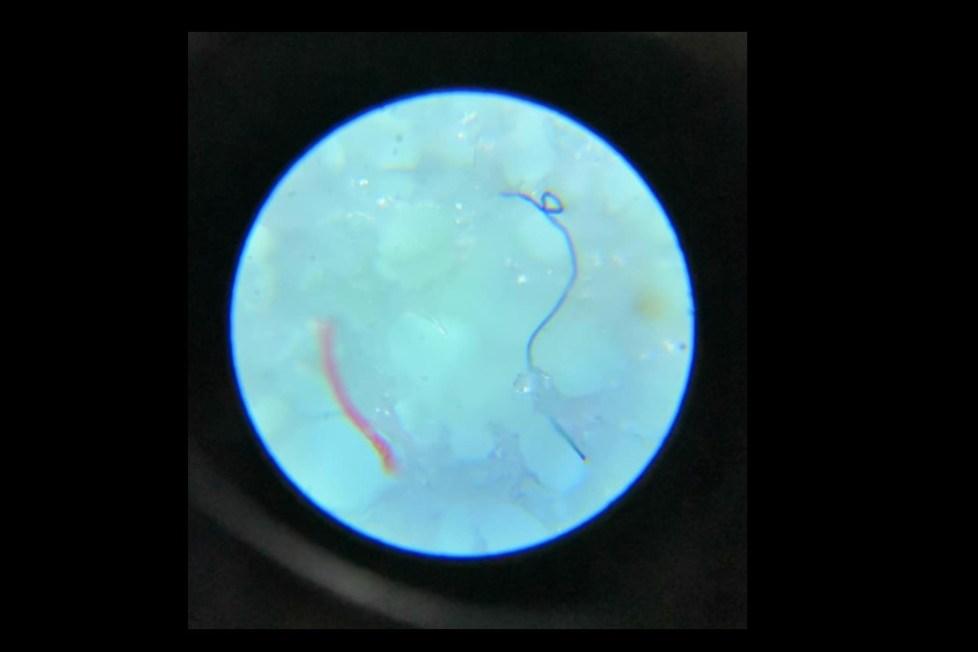 parazit testy
