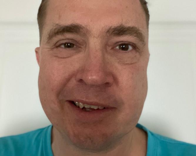 šmucler ochrnutý obličej