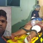Membros de facção invadem casa e jovem é baleado com 3 tiros, no Santa Inês