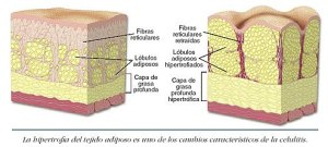 En la imagen observamos como se deforma el tejido graso
