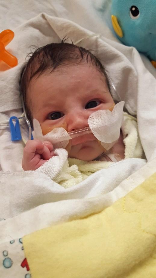 Le petit Justin Blanchard peu après son opération. - Gracieuseté