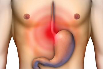 Heartburn GERD Treatment