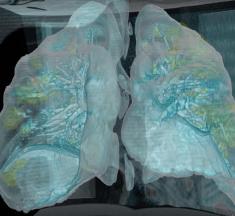 3D video: vaata, mida teeb COVID-19 viirus inimese kopsudega
