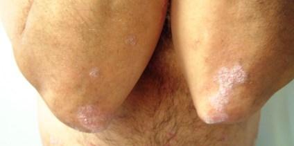 Detalle de Psoriasis en los codos