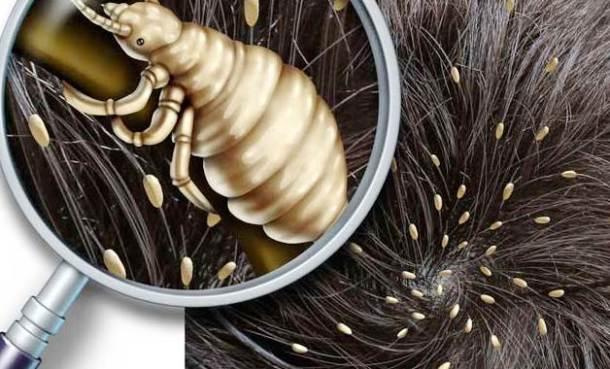 como eliminar piojos en el cabello