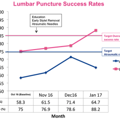 Lumbar Puncture Diagram 2007 Jeep Wrangler Front Suspension Improving Success Rates In Febrile Neonates Results