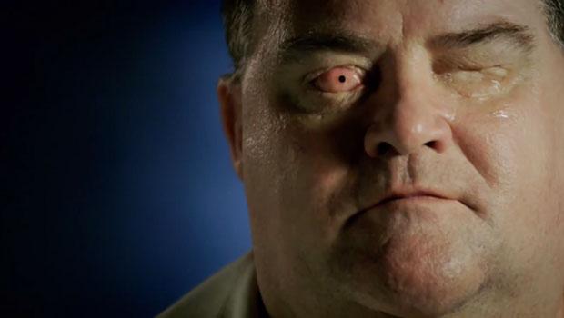 Cego recupera a visão implantado próprio dente no olho.