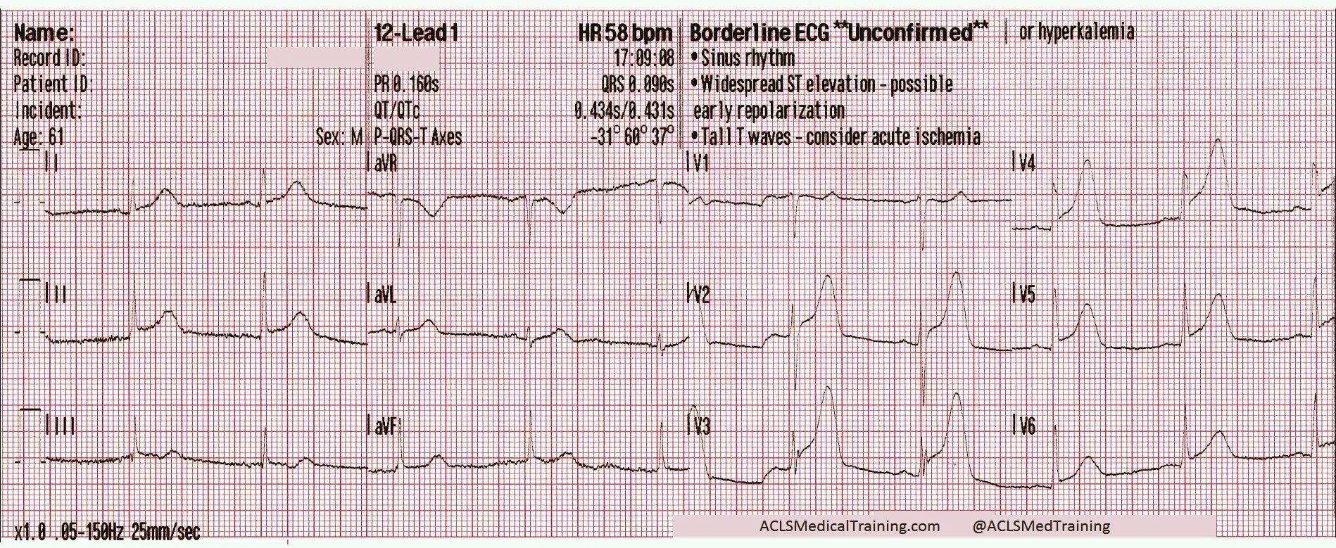 Chest Pain And Transient St Segment Elevation