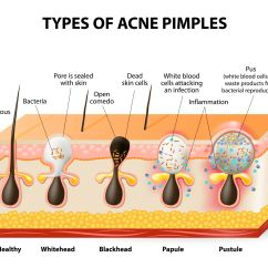 What Causes Acne Diagram Corsa D Stereo Wiring Types Of Prone Skin Care