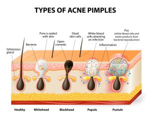 Types of Acne | Acne Prone Skin Care