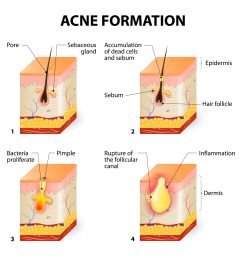 what is acne acne prone skin care back acne diagram acne vulgaris diagram [ 2048 x 2048 Pixel ]