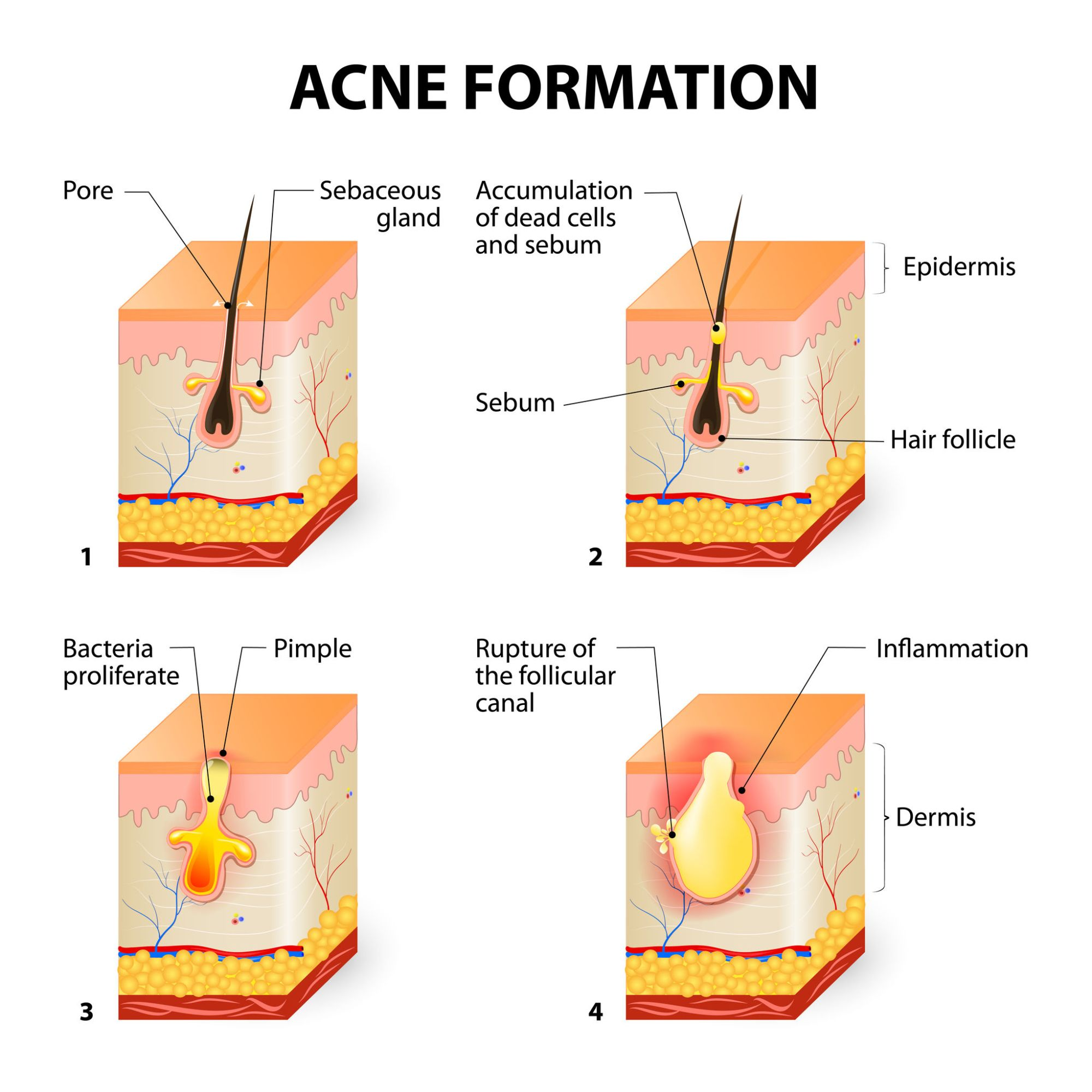hight resolution of what is acne acne prone skin care back acne diagram acne vulgaris diagram