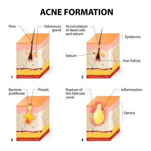 What is Acne | Acne Prone Skin Care