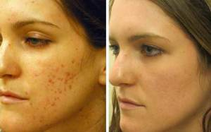 How-to-Get-Rid-of-Acne-Scars-Naturally-Without-Chemicals