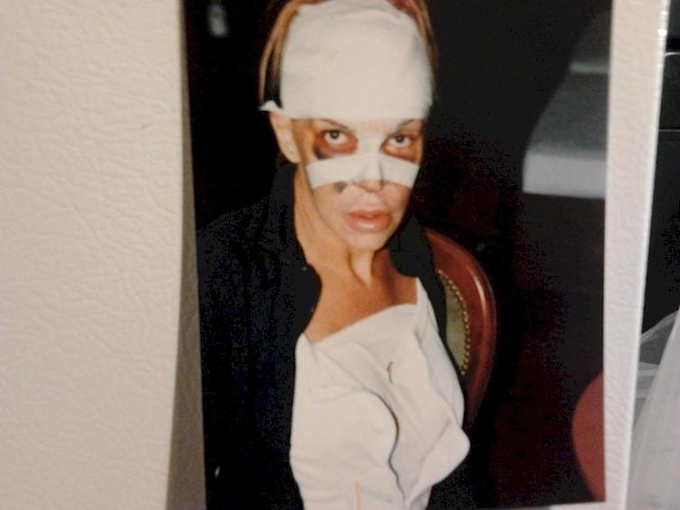 Esta mulher gastou mais de R$200 mil pelo corpo perfeito e este é o resultado