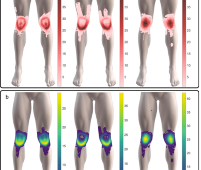 Interestingly The Authors Found That The Shape Of Knee Pain Distribution Was Not Related To A Persons Age Sex Or Pain Intensity