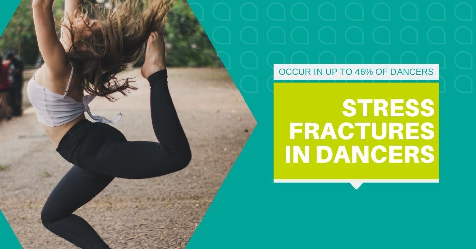 Stress Fractures in Dancers