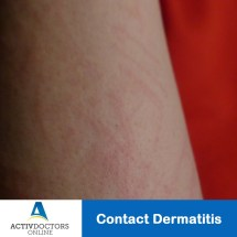 Contact Dermatitis Symptoms - Year of Clean Water