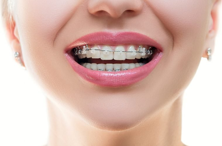 Am I too old for braces? - Active Family Magazine