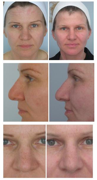 Microcurrent acupuncture facial rejuvenation images 516