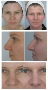 Facial rejuvenation before_after