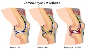 arthritis pain osteoarthritis rheumatoid acupuncture