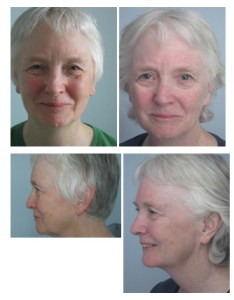 facial rejuvenation before_after2