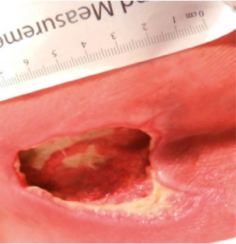 Grade 3 pressure ulcer