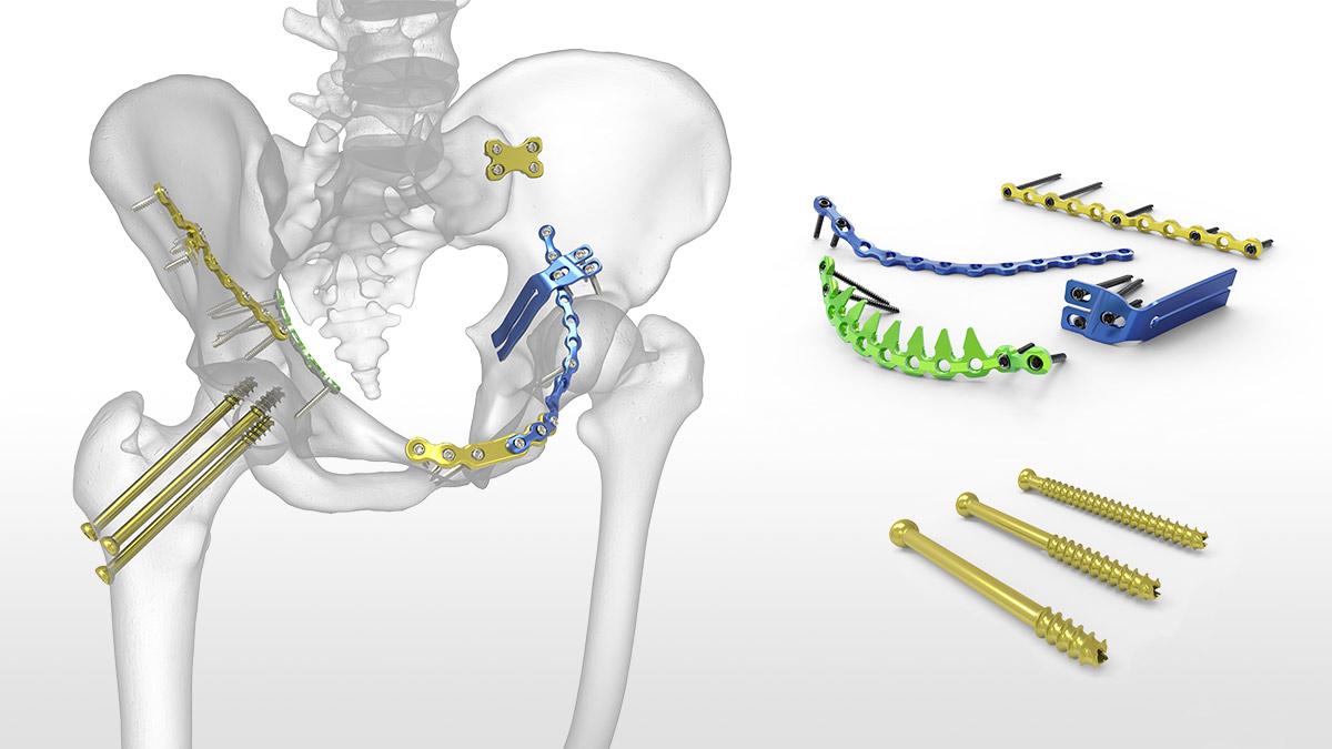 hight resolution of hip pelvis
