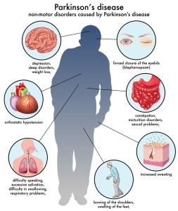 acupuncture for parkinson's disease