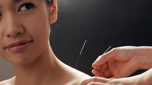 Acupuncture, needling in: Which symptoms and sickness does the ancient therapy treat most effectively?