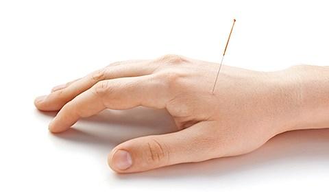 Acupuncture – MRI shows lasting pain relief