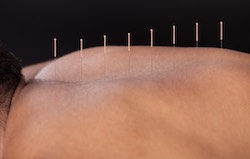 Acupuncture soothes fibromyalgia and helps sleep