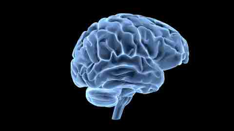 A x-ray of a brain undergoing Dr. Amen's healing techniques for ADHD