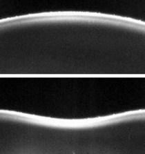 Miden la elasticidad de la córnea combinando imágenes con pulsos de aire 4