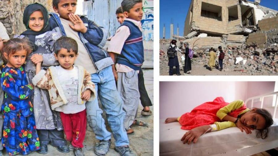 «الجوع، الحرب، المرض»، ثلاثية ما زالت تحاصر الشعب اليمني
