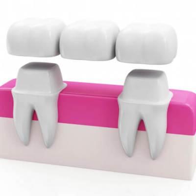 dental_crowns_and_bridges1487871984-1 copy